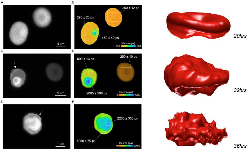 Lifetime and3D imaging of infected blood cell