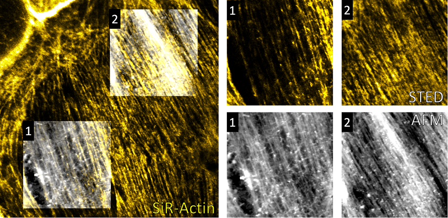 Correlative STED/AFM study on live-cells published in Frontiers in Neuroscience (2017).